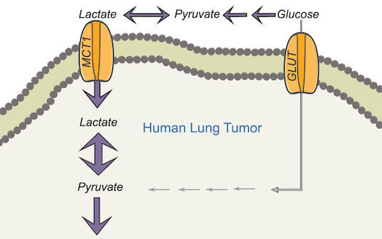 Lactate, long considered a waste product of cancer cells, discovered to fuel growing tumors. These findings represent a major shift in how researchers view lung cancer metabolism. They represent a new path of study for therapies and imaging techniques.